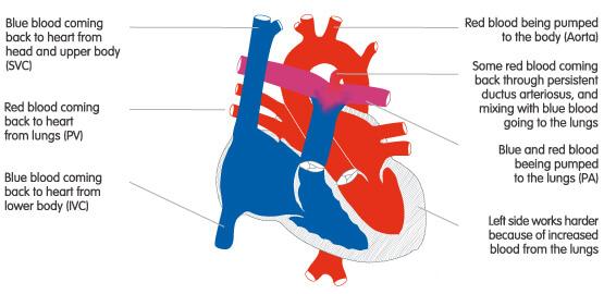 Persistența de canal arterial (PCA)